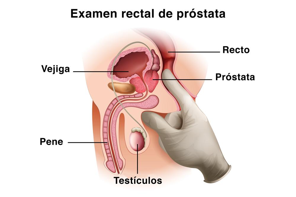 Examen rectal